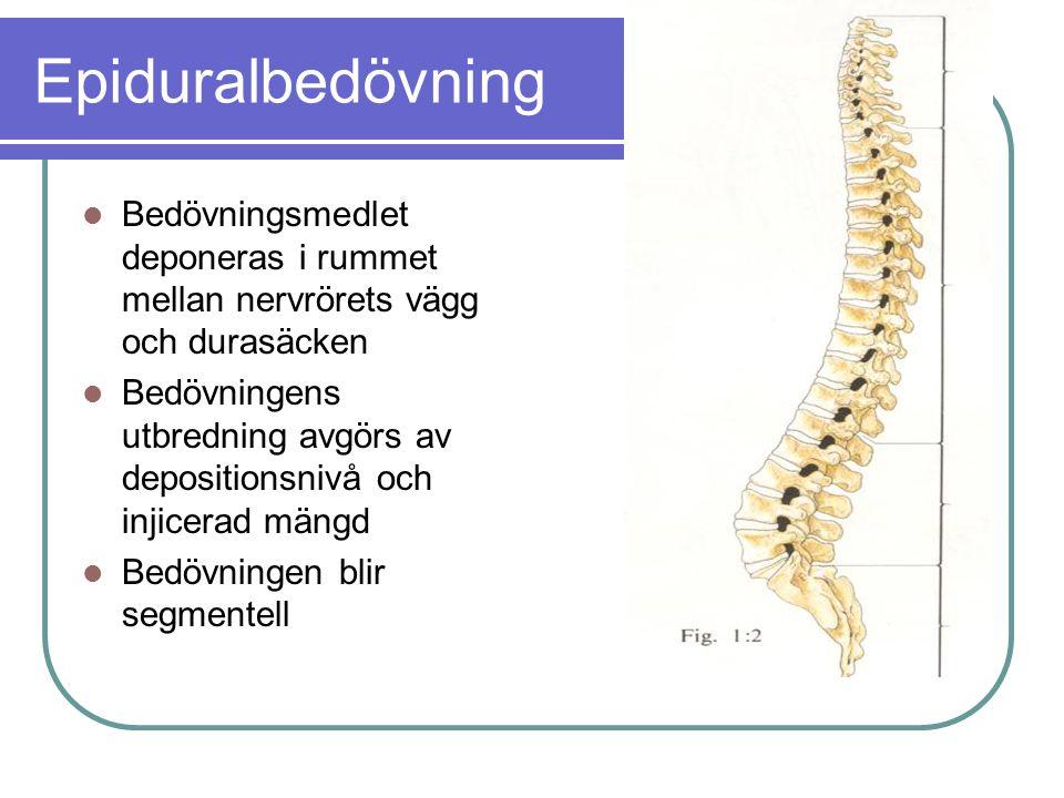Epiduralbedövning Bedövningsmedlet deponeras i rummet mellan nervrörets vägg och durasäcken.