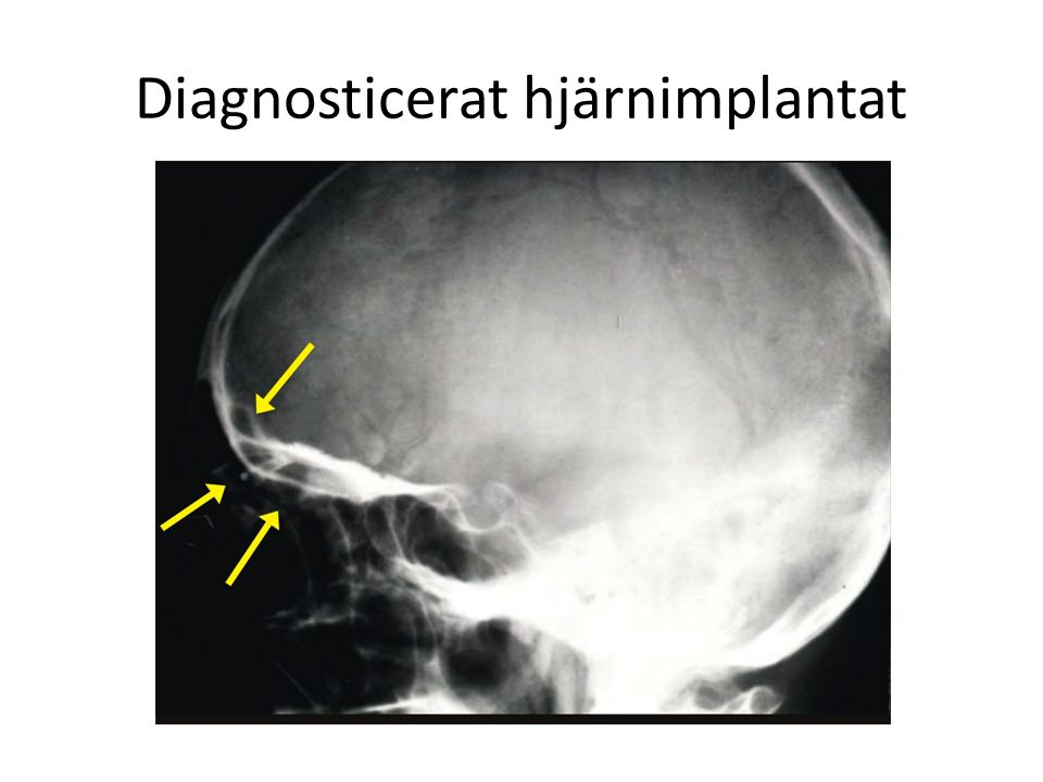 Diagnosticerat hjärnimplantat
