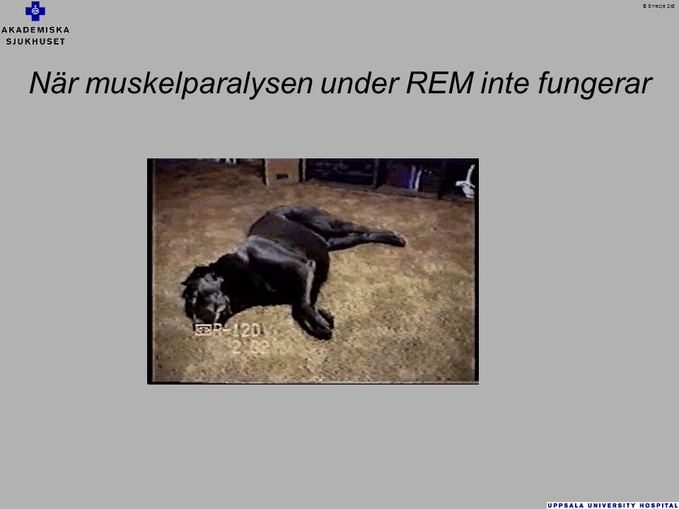 När muskelparalysen under REM inte fungerar
