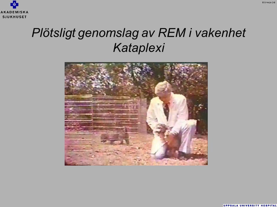 Plötsligt genomslag av REM i vakenhet Kataplexi