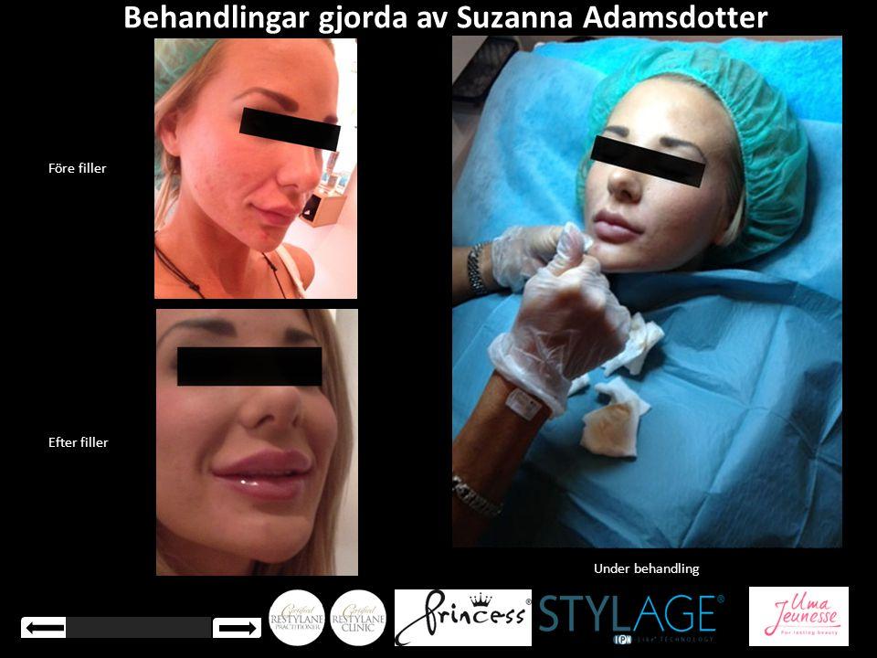 Behandlingar gjorda av Suzanna Adamsdotter