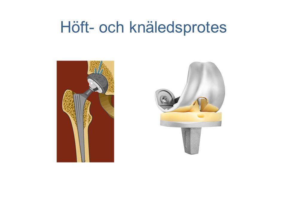 Höft- och knäledsprotes