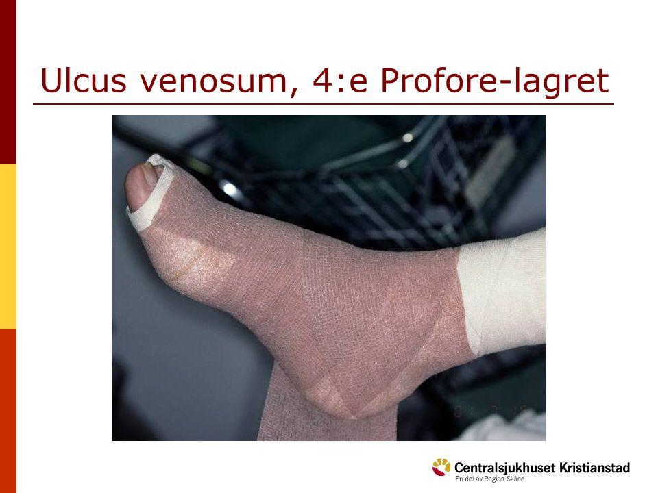 Ulcus venosum, 4:e Profore-lagret
