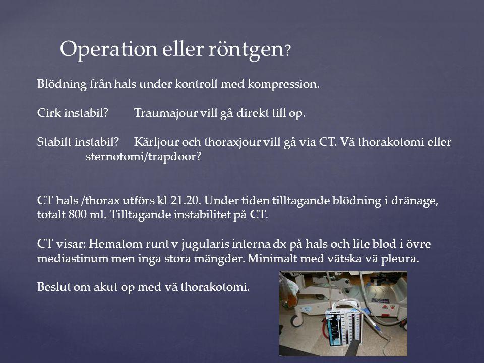 Operation eller röntgen