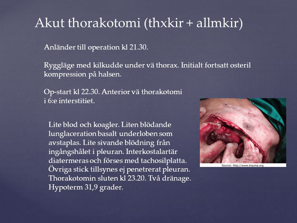 Akut thorakotomi (thxkir + allmkir)