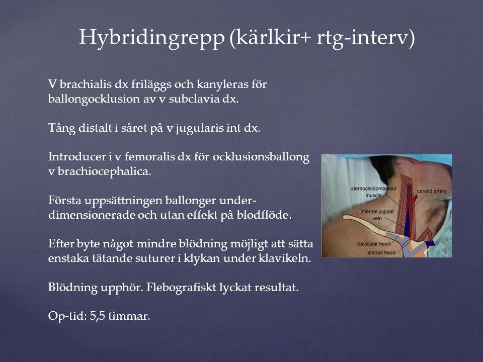 Hybridingrepp (kärlkir+ rtg-interv)