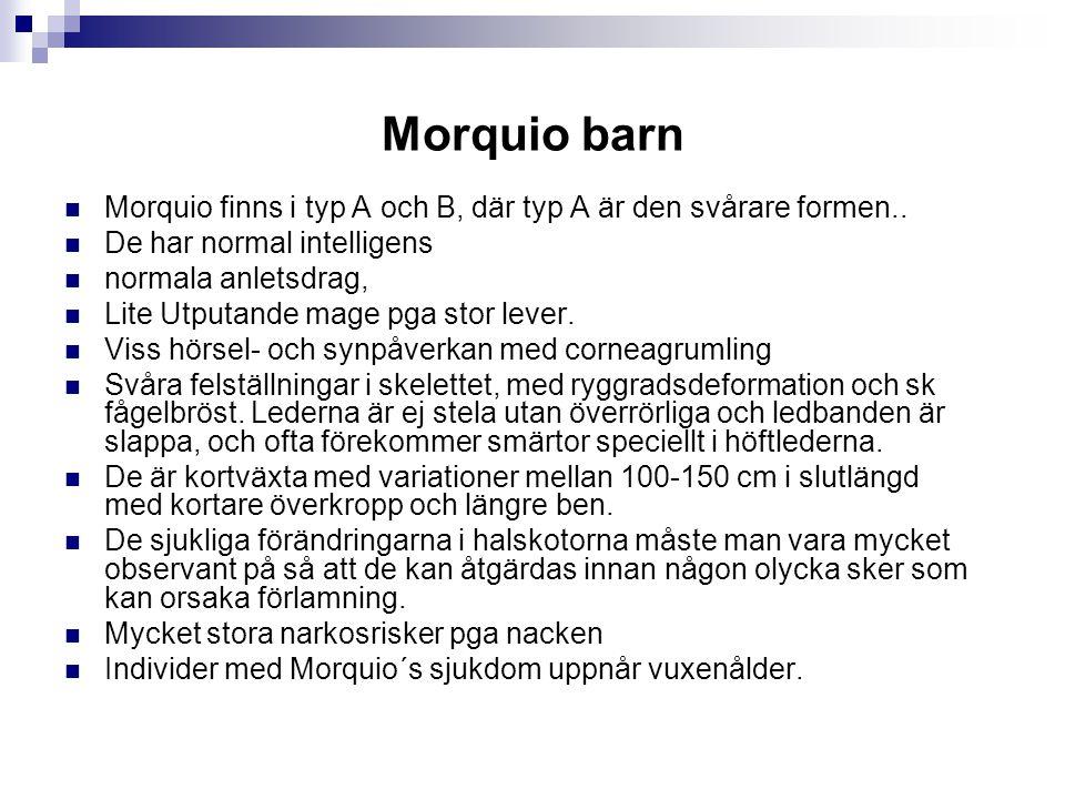 Morquio barn Morquio finns i typ A och B, där typ A är den svårare formen.. De har normal intelligens.