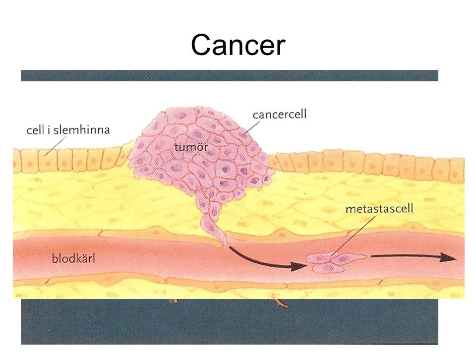 Cancer Den första cancercellen startar alltid i en vanlig frisk cell någonstans i kroppen.