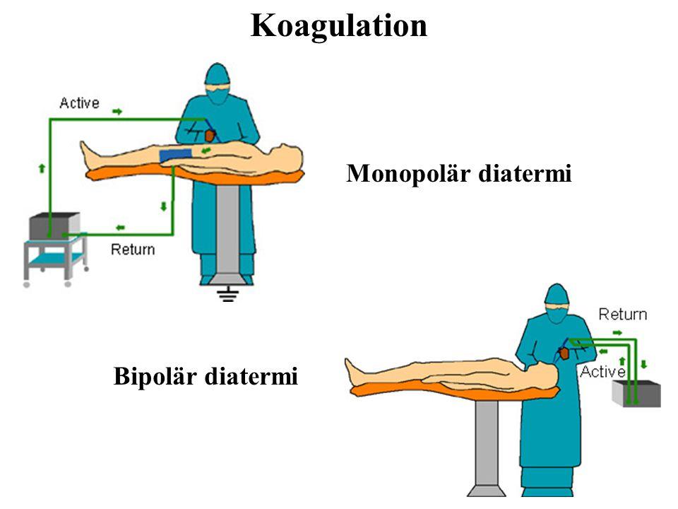 Koagulation Monopolär diatermi Bipolär diatermi