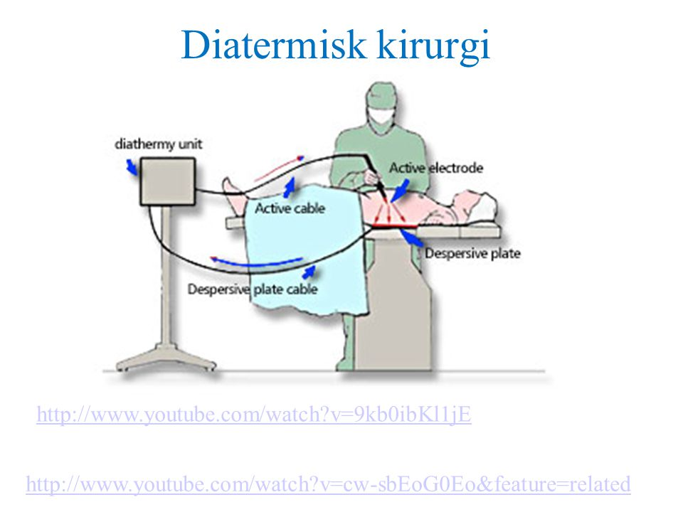 Diatermisk kirurgi http://www.youtube.com/watch v=9kb0ibKl1jE
