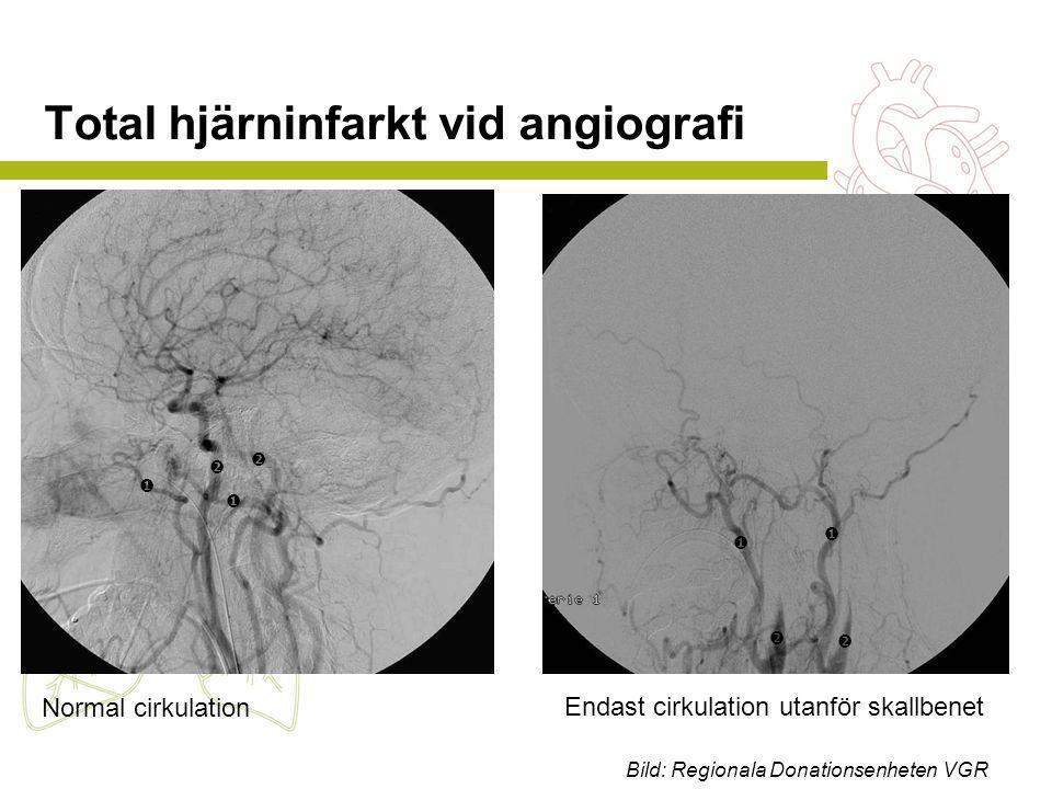 Total hjärninfarkt vid angiografi