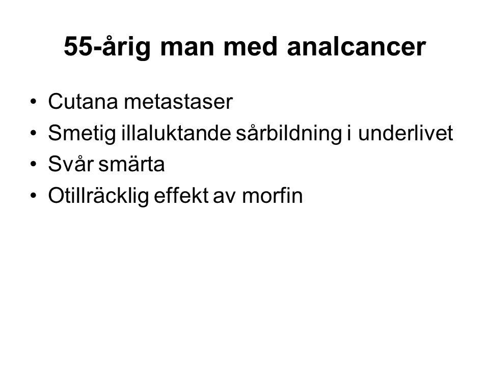 55-årig man med analcancer