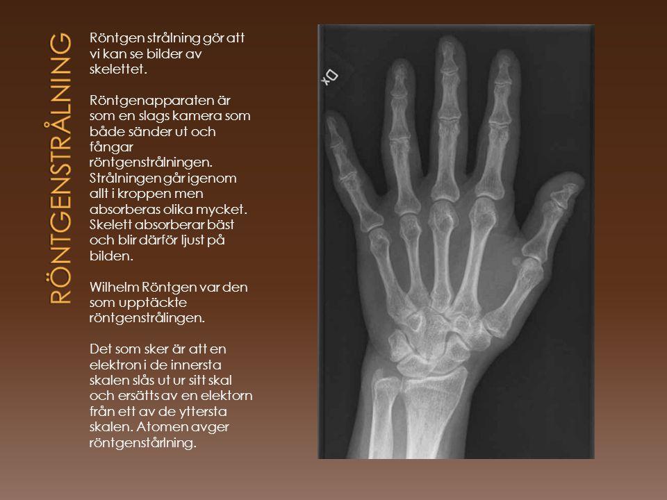 röntgenstrålning Röntgen strålning gör att vi kan se bilder av skelettet.