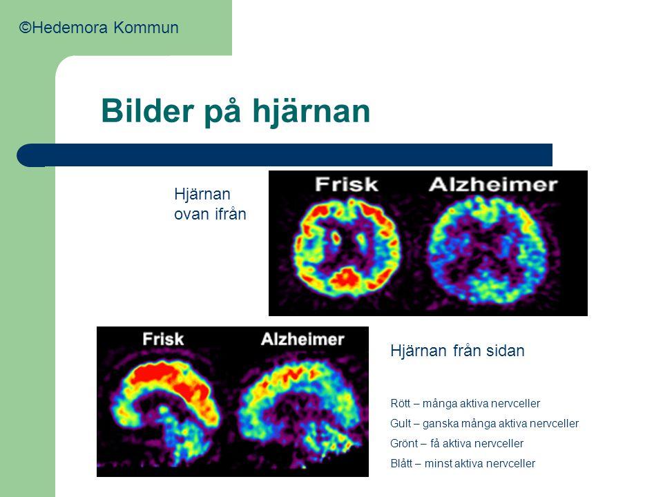 Bilder på hjärnan ©Hedemora Kommun Hjärnan ovan ifrån