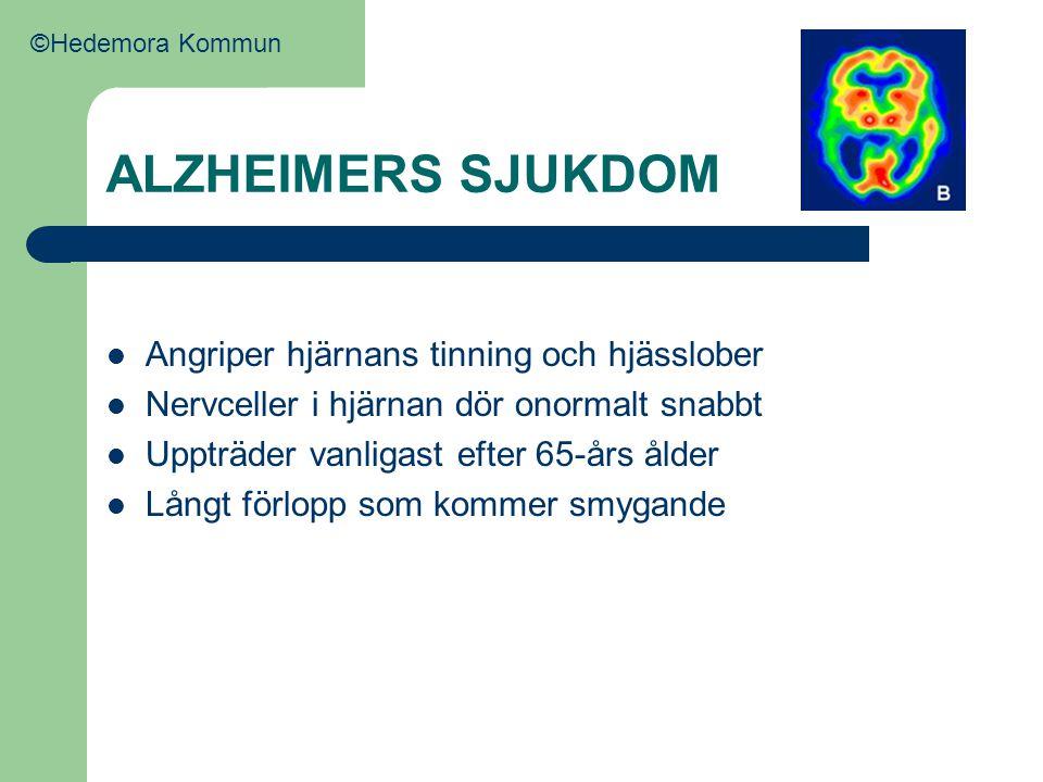 ALZHEIMERS SJUKDOM Angriper hjärnans tinning och hjässlober