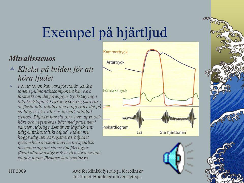 Exempel på hjärtljud Mitralisstenos