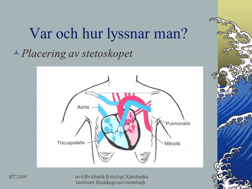 Var och hur lyssnar man Placering av stetoskopet HT 2009