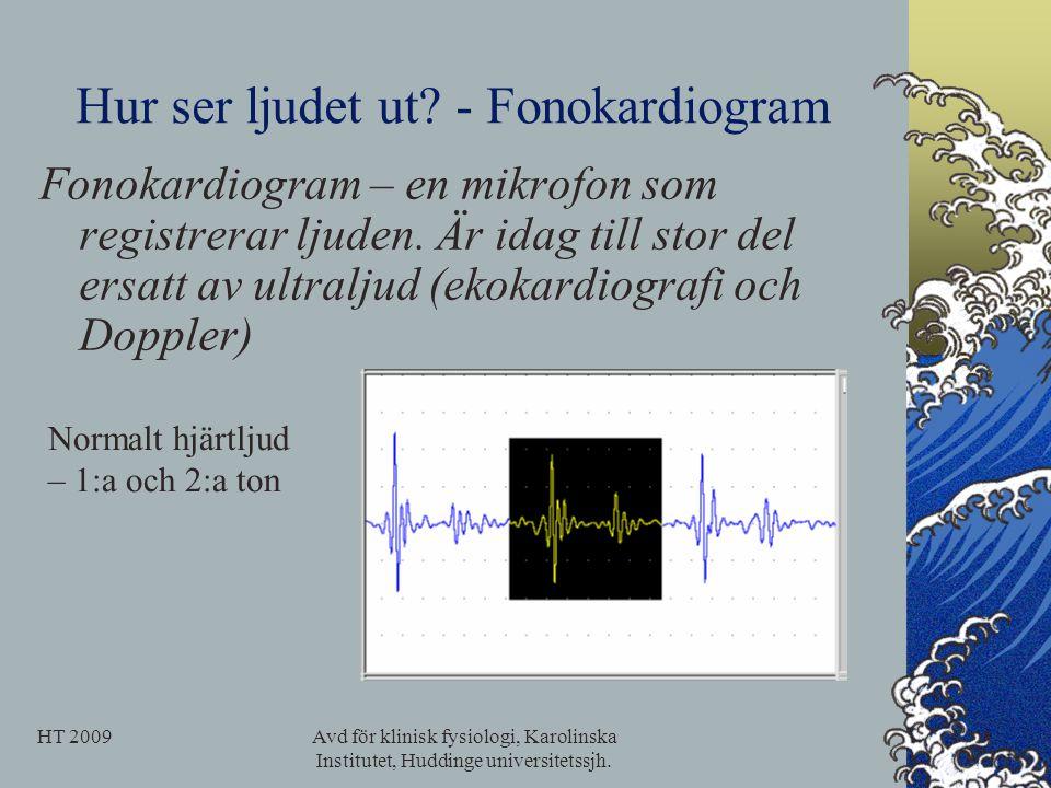 Hur ser ljudet ut - Fonokardiogram
