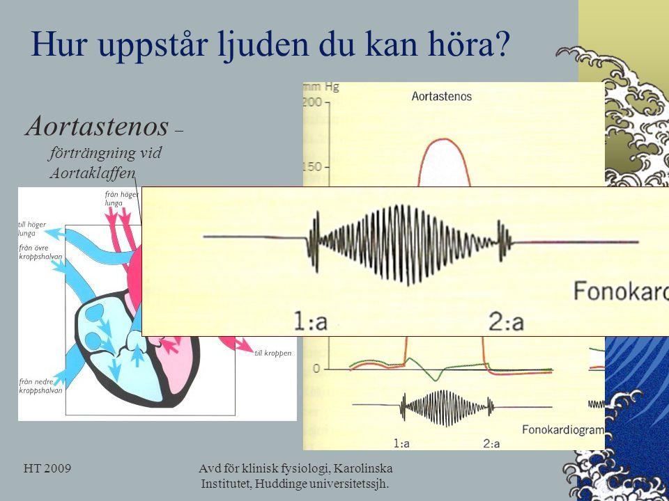 Hur uppstår ljuden du kan höra