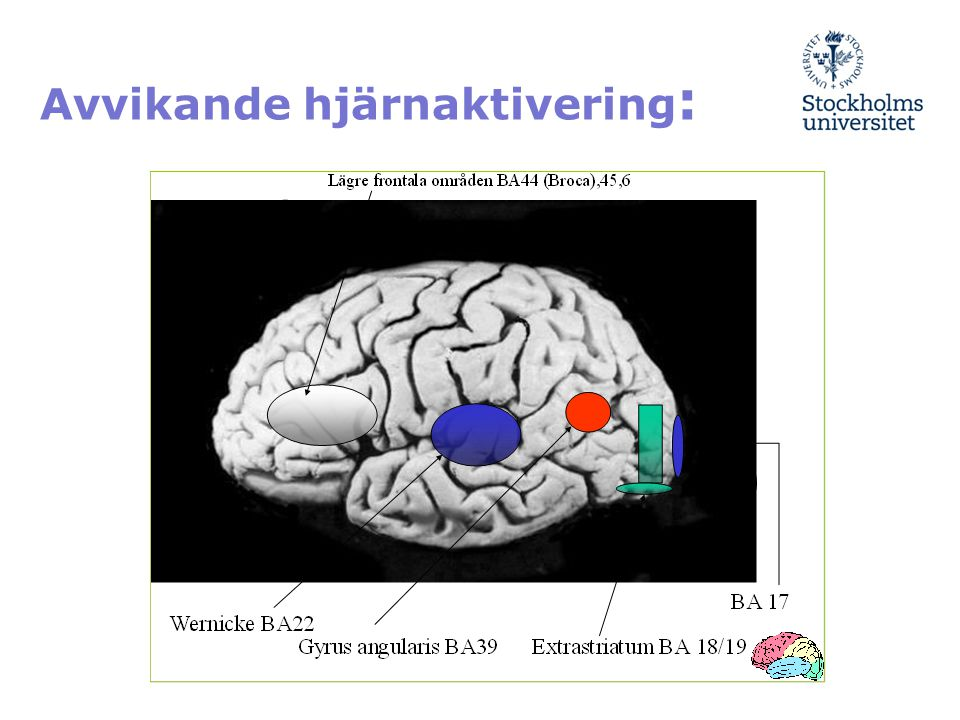 Avvikande hjärnaktivering: