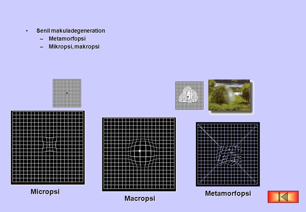 Micropsi Metamorfopsi Macropsi Senil makuladegeneration Metamorfopsi