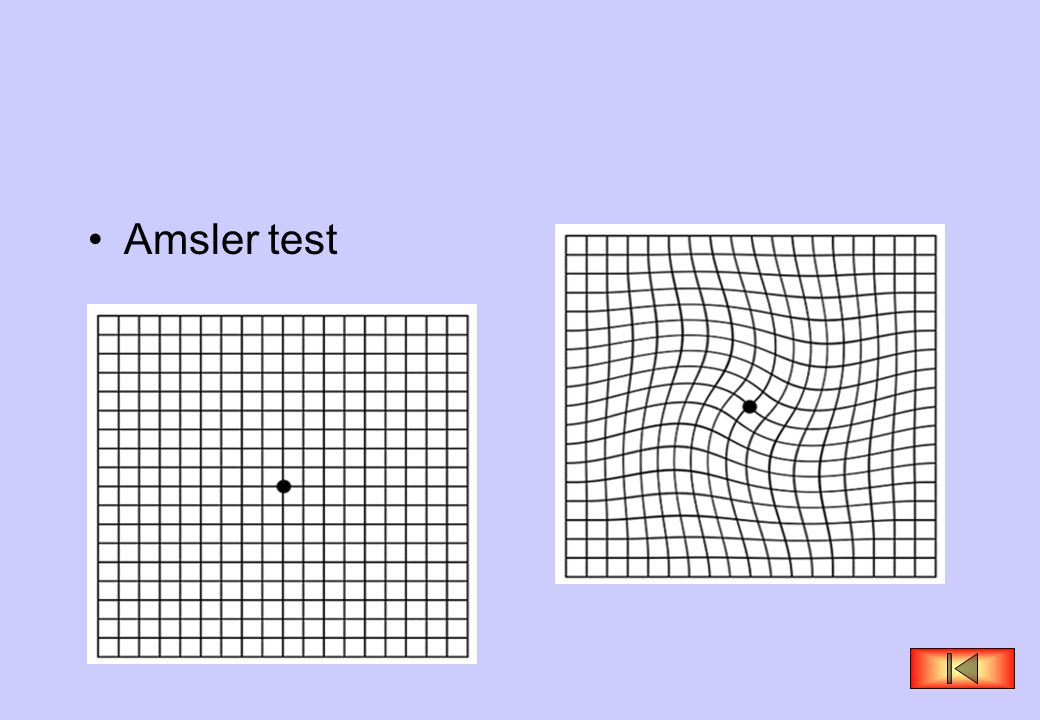 Amsler test