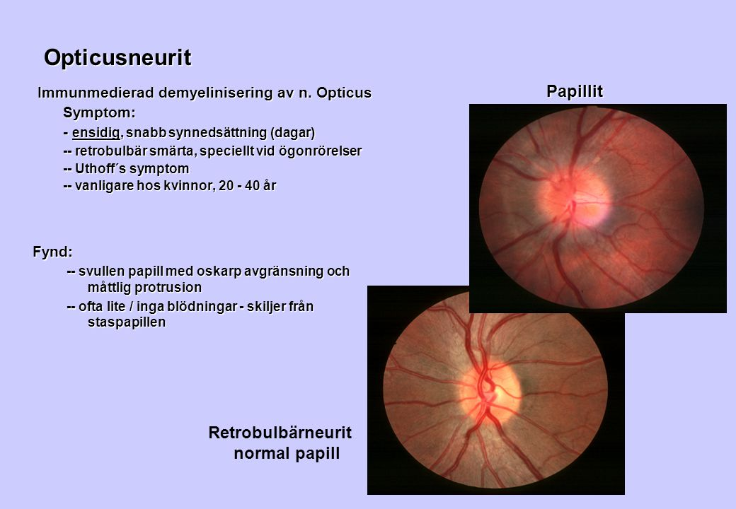 Opticusneurit Papillit Retrobulbärneurit normal papill