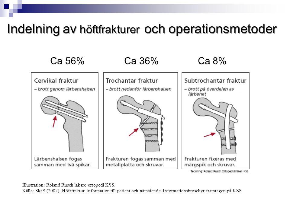 Indelning av höftfrakturer och operationsmetoder