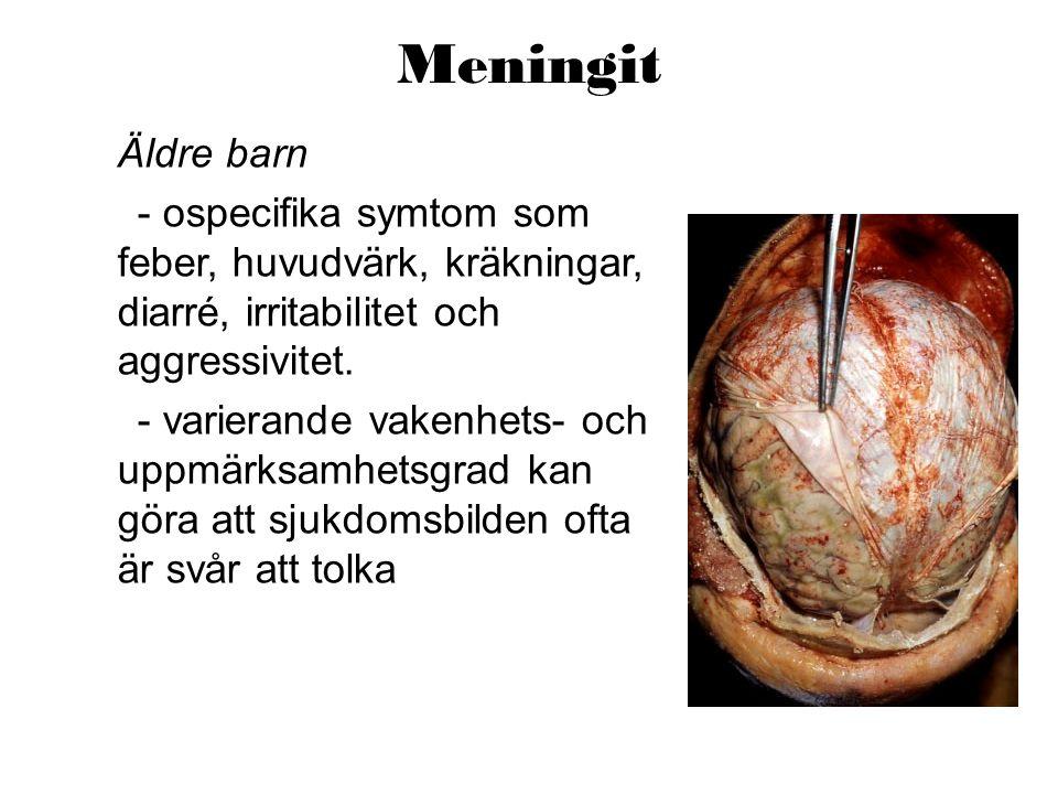 Meningit Äldre barn. - ospecifika symtom som feber, huvudvärk, kräkningar, diarré, irritabilitet och aggressivitet.
