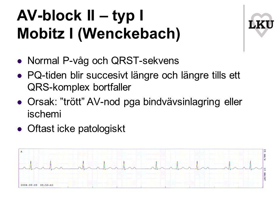 AV-block II – typ I Mobitz I (Wenckebach)