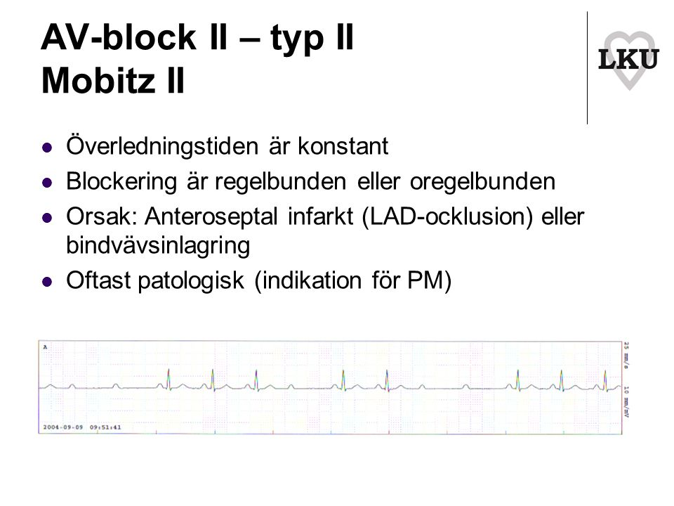 AV-block II – typ II Mobitz II