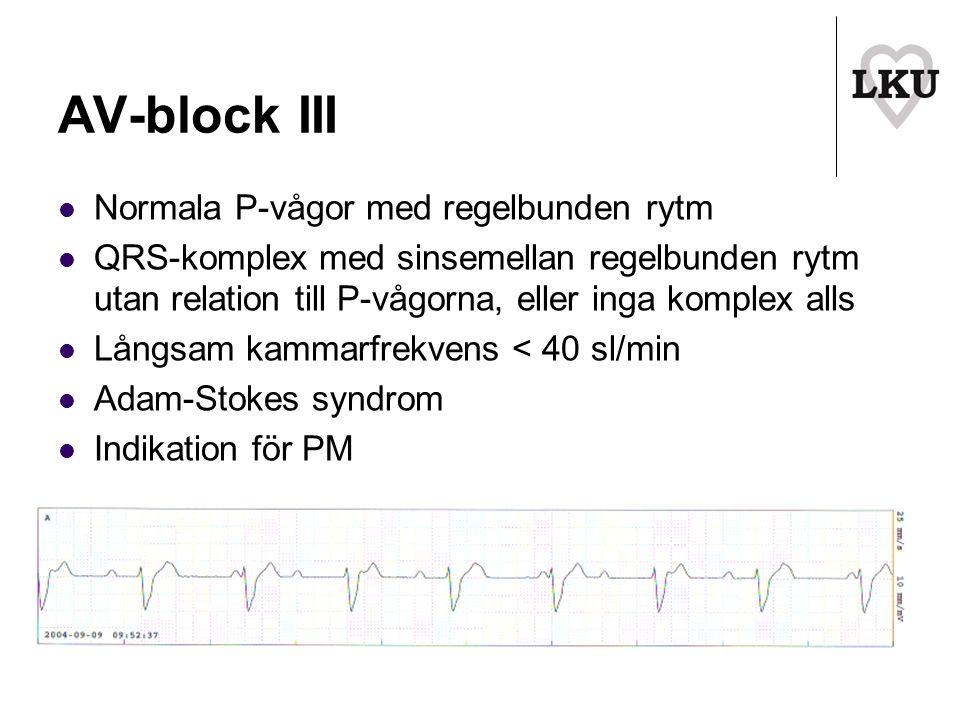 AV-block III Normala P-vågor med regelbunden rytm