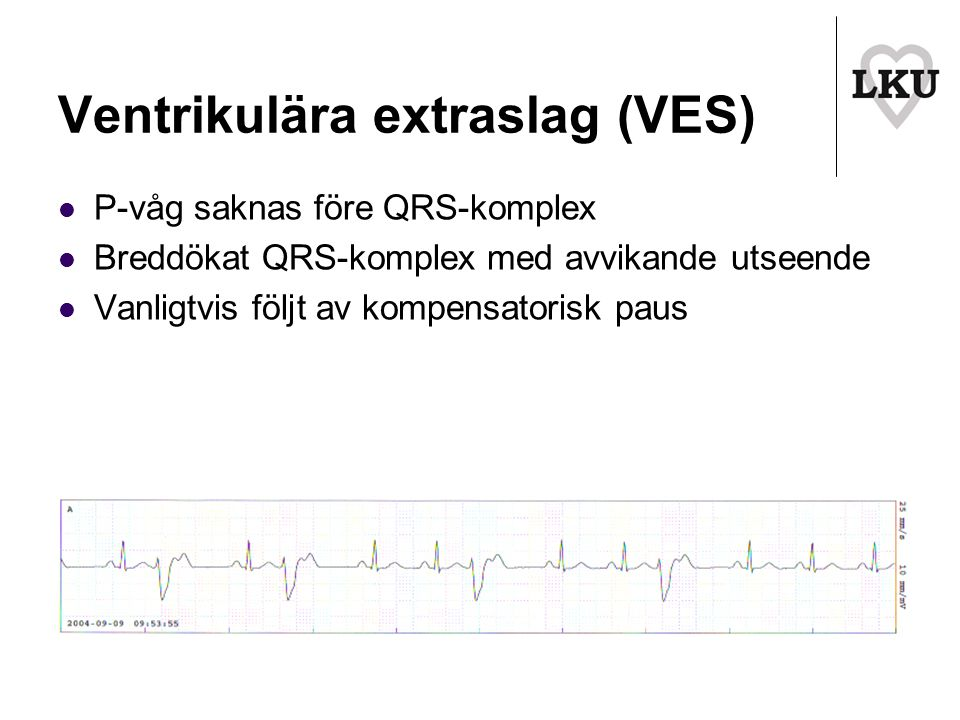 Ventrikulära extraslag (VES)
