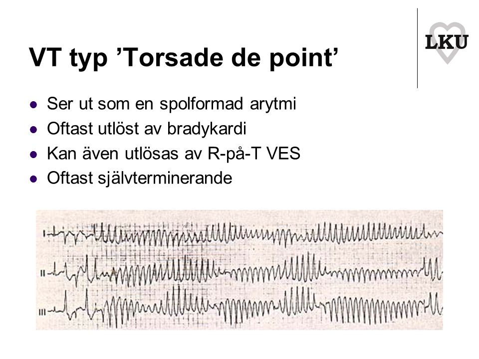 VT typ 'Torsade de point'