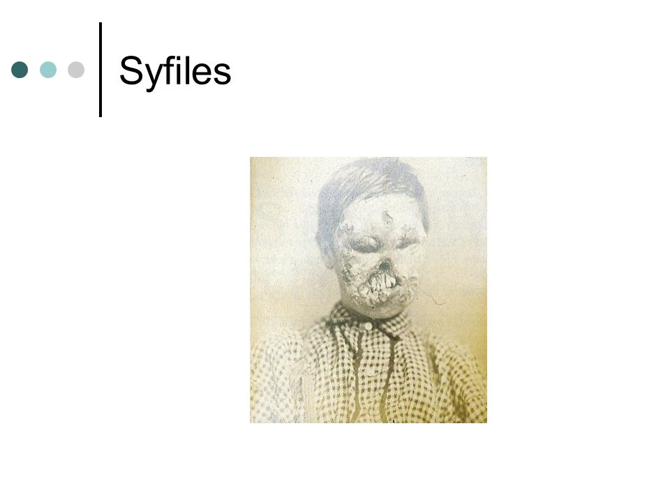 Syfiles