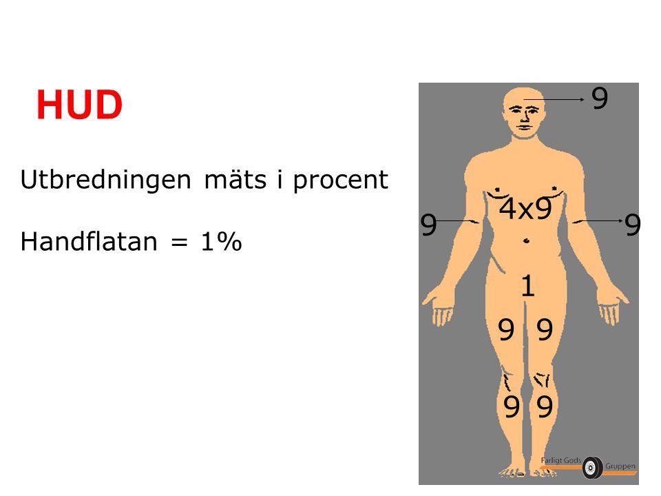HUD 9 Utbredningen mäts i procent Handflatan = 1% 4x9 9 9 1 9 9 9 9