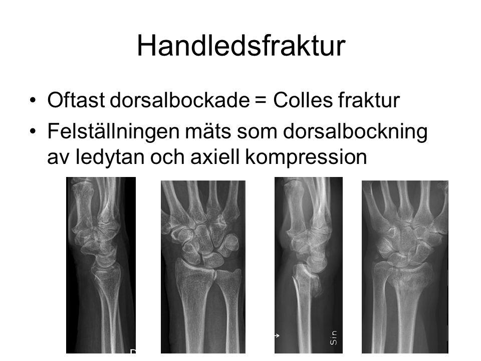 Handledsfraktur Oftast dorsalbockade = Colles fraktur