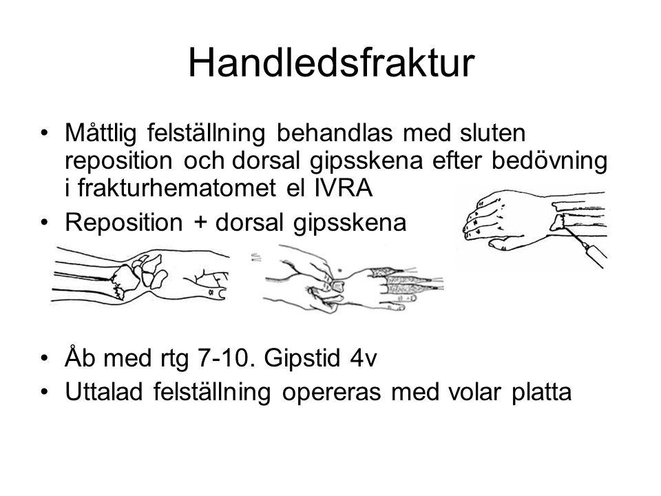 Handledsfraktur Måttlig felställning behandlas med sluten reposition och dorsal gipsskena efter bedövning i frakturhematomet el IVRA.