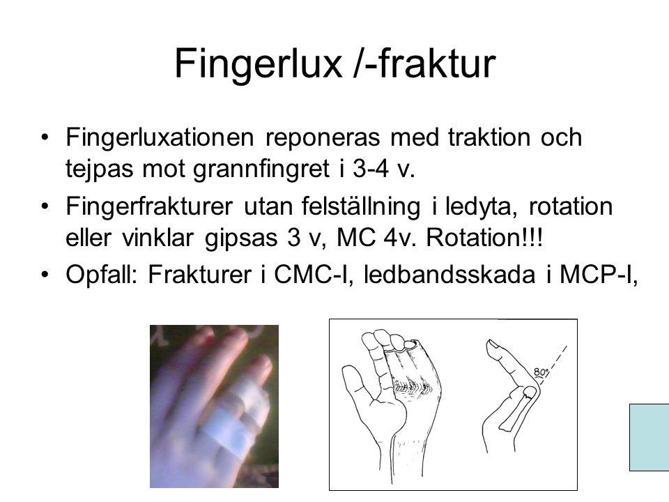 Fingerlux /-fraktur Fingerluxationen reponeras med traktion och tejpas mot grannfingret i 3-4 v.
