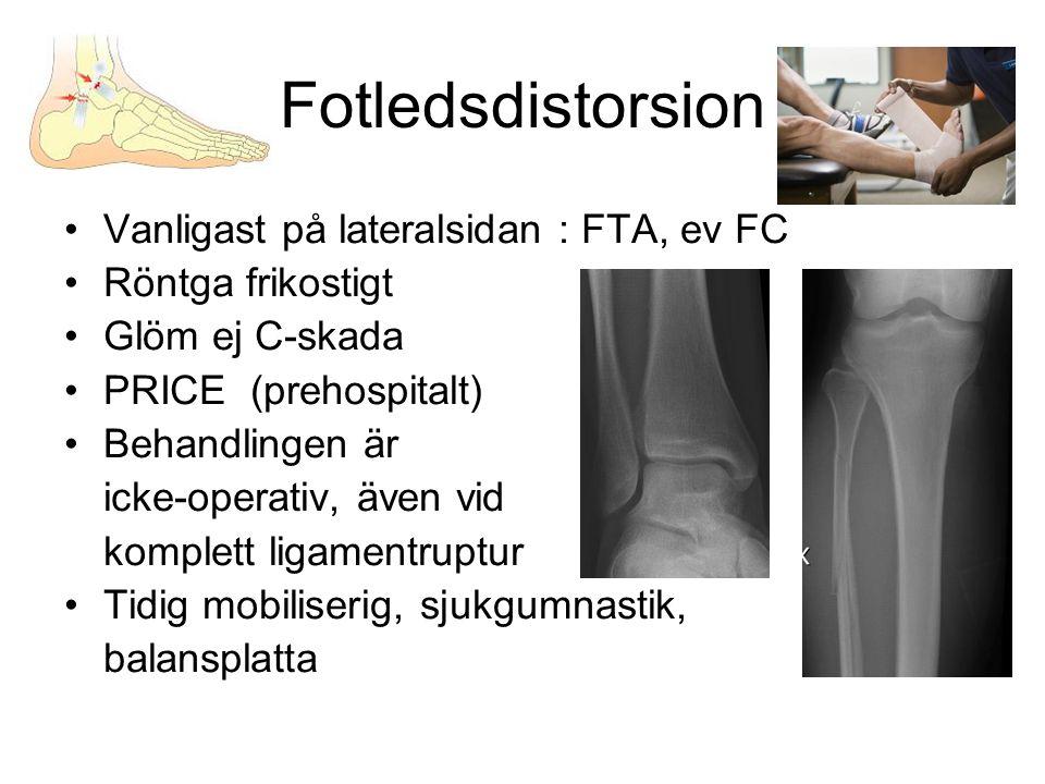 Fotledsdistorsion Vanligast på lateralsidan : FTA, ev FC