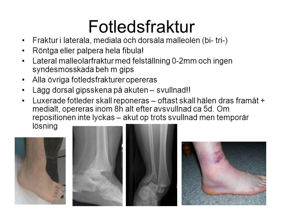 Fotledsfraktur Fraktur i laterala, mediala och dorsala malleolen (bi- tri-) Röntga eller palpera hela fibula!