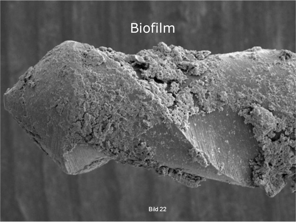 Biofilm Diskdesinfektorn ska åstadkomma att få bort biofilmen från instrumenten.