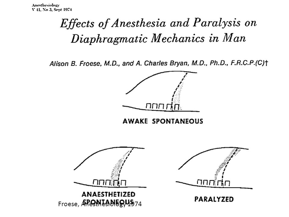 Froese, Anesthesiology 1974