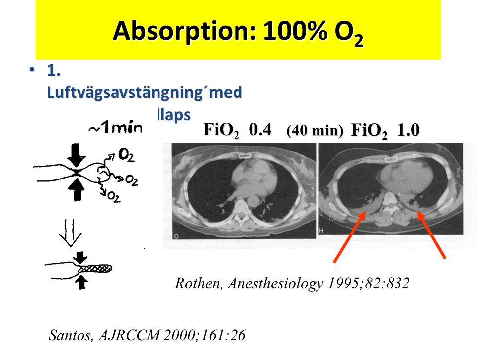 Absorption: 100% O2 1. Luftvägsavstängning´med absorptionskollaps