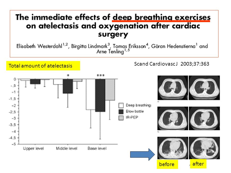 Scand Cardiovasc J 2003;37:363 Total amount of atelectasis before after