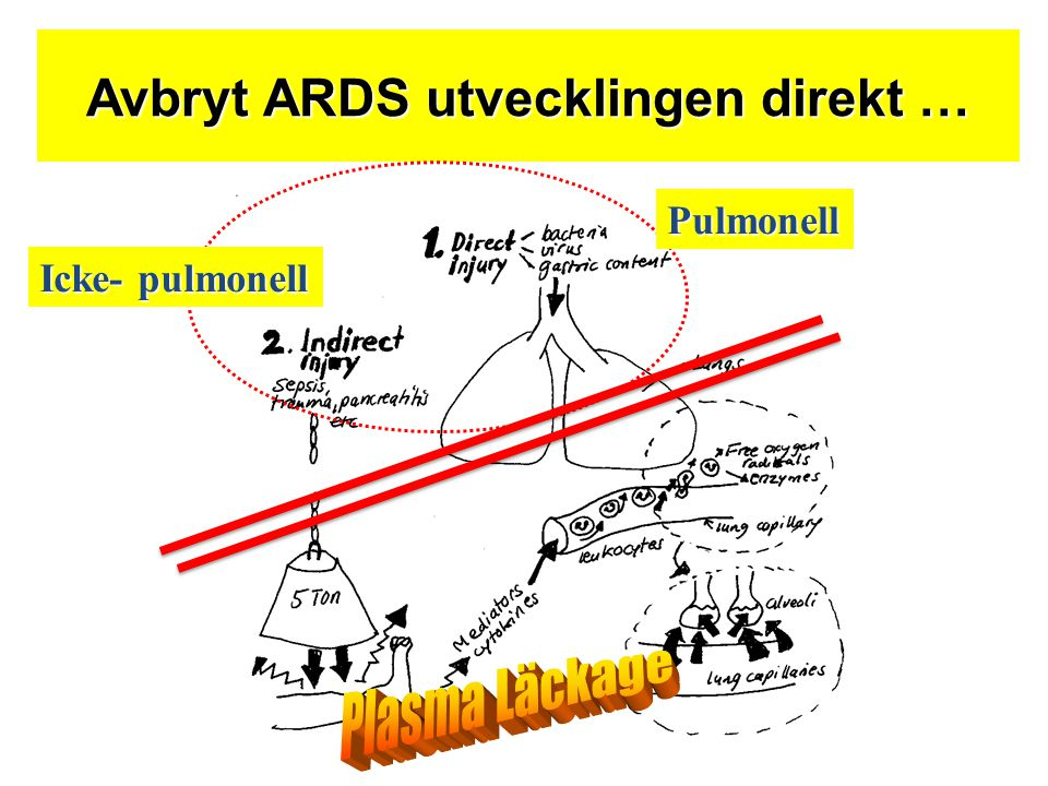 Avbryt ARDS utvecklingen direkt …
