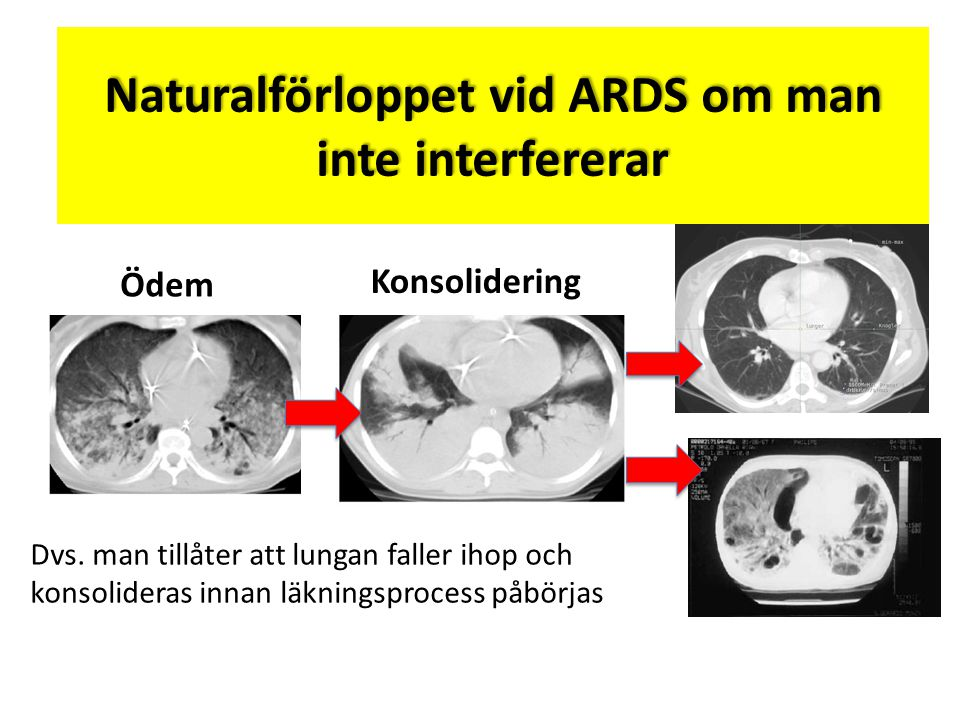Naturalförloppet vid ARDS om man inte interfererar