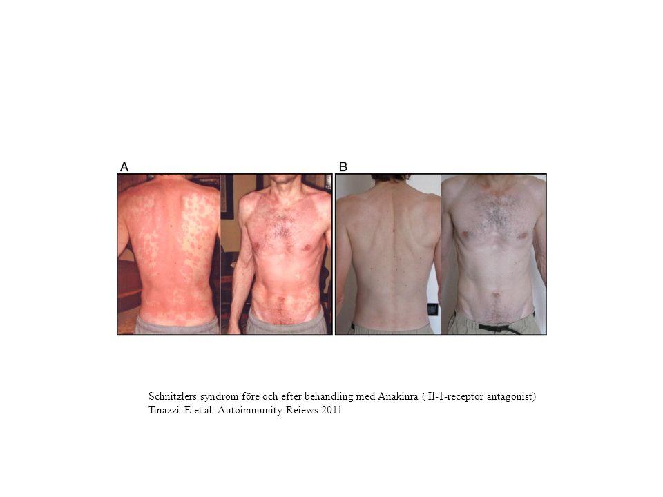 Schnitzlers syndrom före och efter behandling med Anakinra ( Il-1-receptor antagonist)