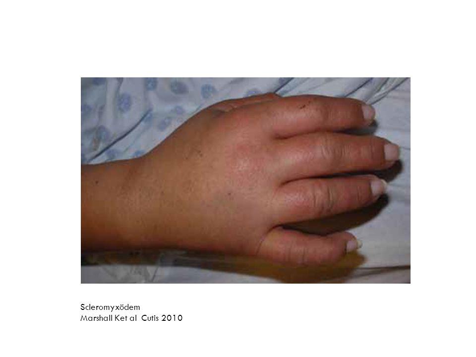 Scleromyxödem Marshall Ket al Cutis 2010