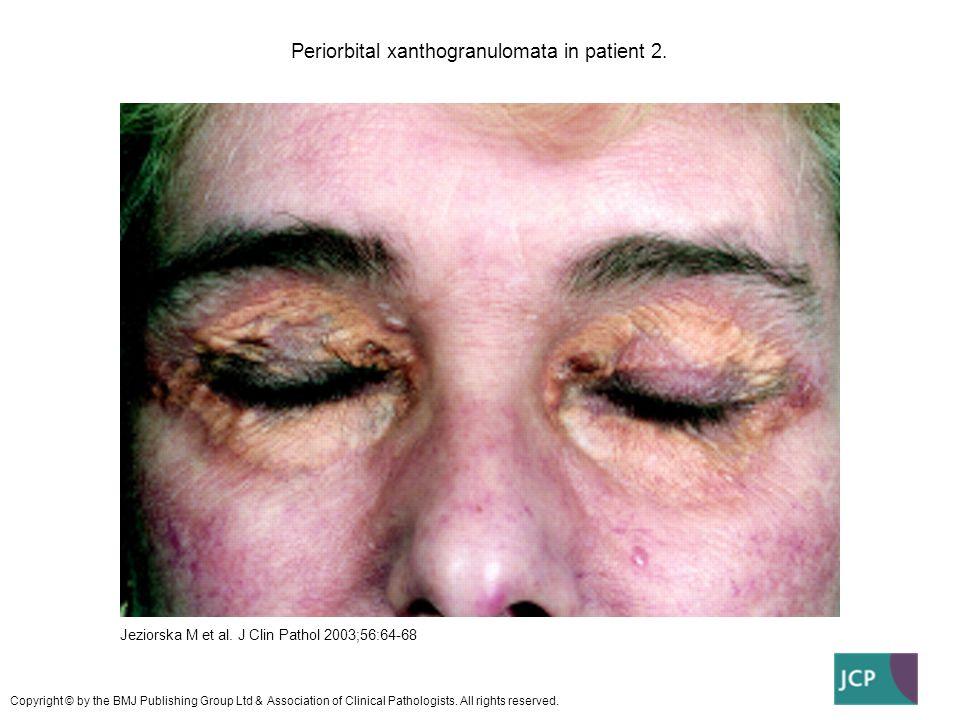 Periorbital xanthogranulomata in patient 2.